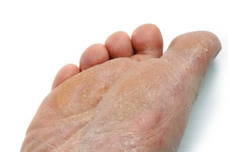 Bridgeton Podiatrist | Bridgeton Athlete's Foot | NJ | Scott A. Fishman, D.P.M. |